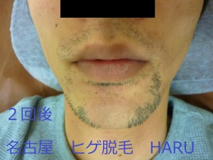 HARUP1070501