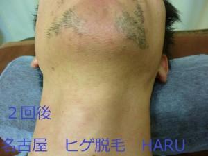 HARUP1070502