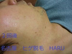 HARUP1070504