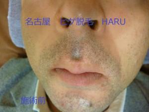 HARUP1010021