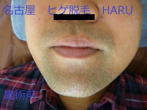 HARUP1070109