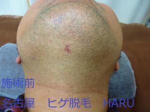 HARUP1070110