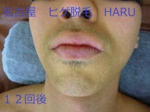 HARUP1070587
