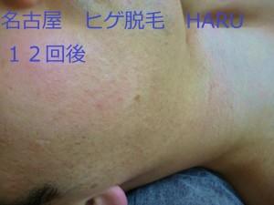 HARUP1070590