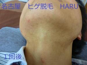 HARUP1070663