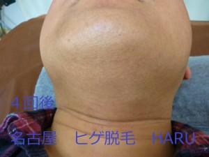 HARUP1070728
