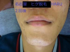 HARUP1070733