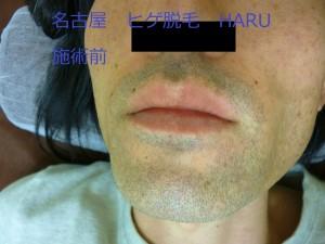 ひげ脱毛名古屋1