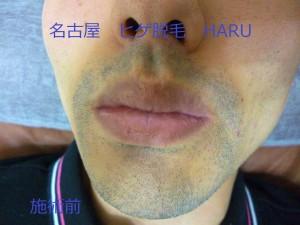 HARUP1030720
