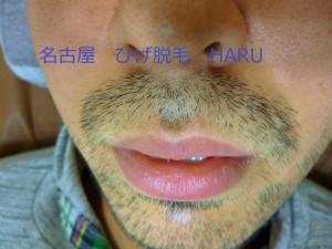 名古屋ヒゲ脱毛HARU1