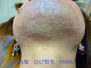 HARUP1010935