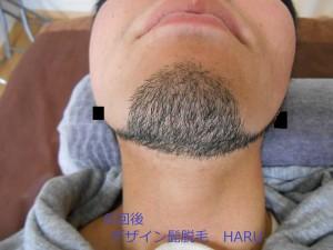 デザイン髭脱毛 首8回後