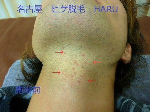 HARUP1060945