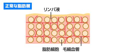正常な脂肪層