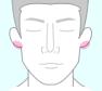 耳たぶ脱毛