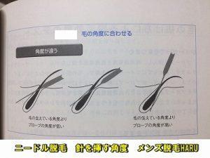 s-ニードル脱毛 針を挿す角度